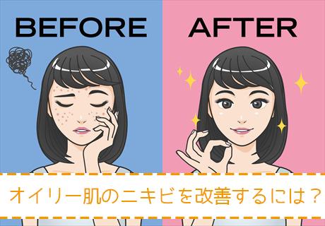 ニキビの改善