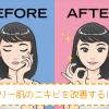 オイリー肌のニキビを改善するスキンケア方法